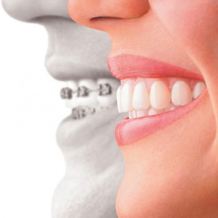 We're the top dental clinic for dental braces Dubai!